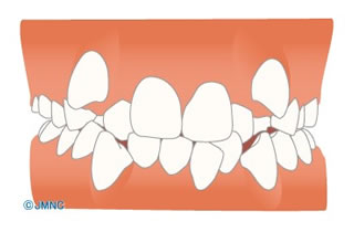 歯のデコボコ